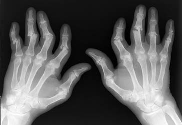 artrite dor articular suplementos nutricao joyce 1