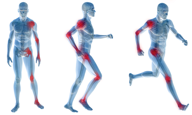 artrite dor articular suplementos nutricao joyce 2