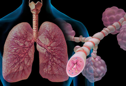 Terapia de Higiene Brônquica na Asma