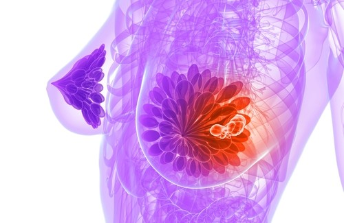 relacao entre soja e cancer de mama nutricao sao paulo