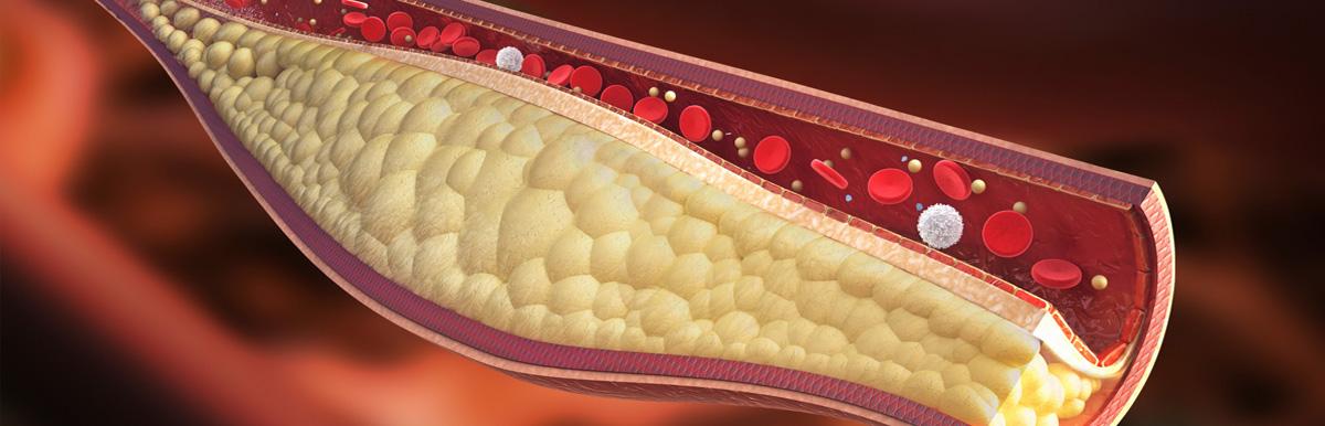 triglicerideos dieta e exercicios